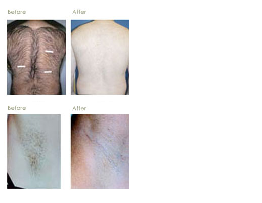 Laser Hair Removal Brandon Dermatology